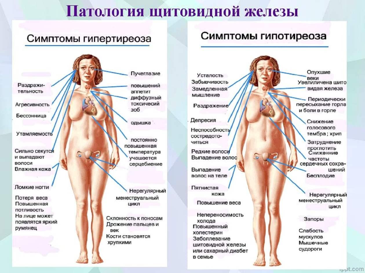 Влияет Ли Щитовидка На Похудение. Щитовидная железа и ее влияние на набор и потерю веса