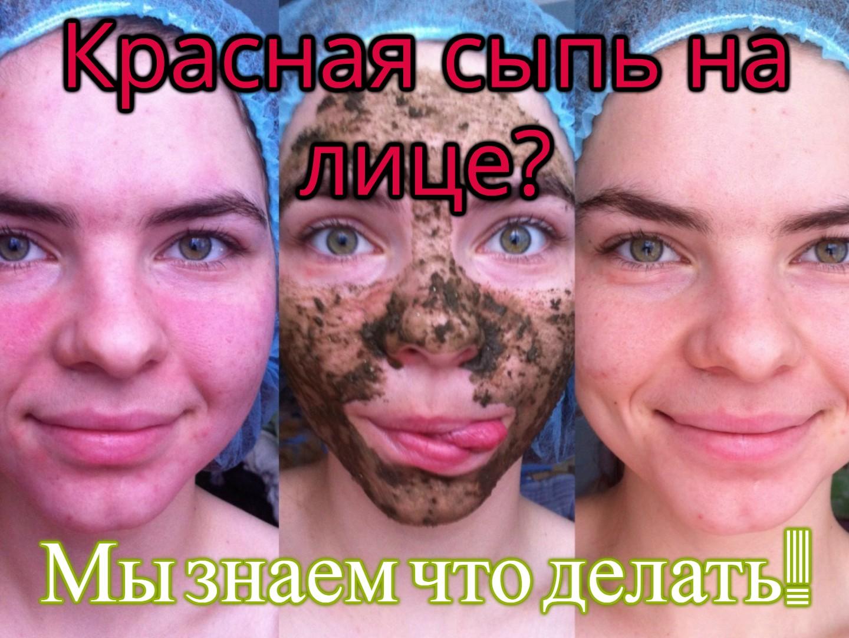 Бугристая кожа Мы знаем как от нее избавиться