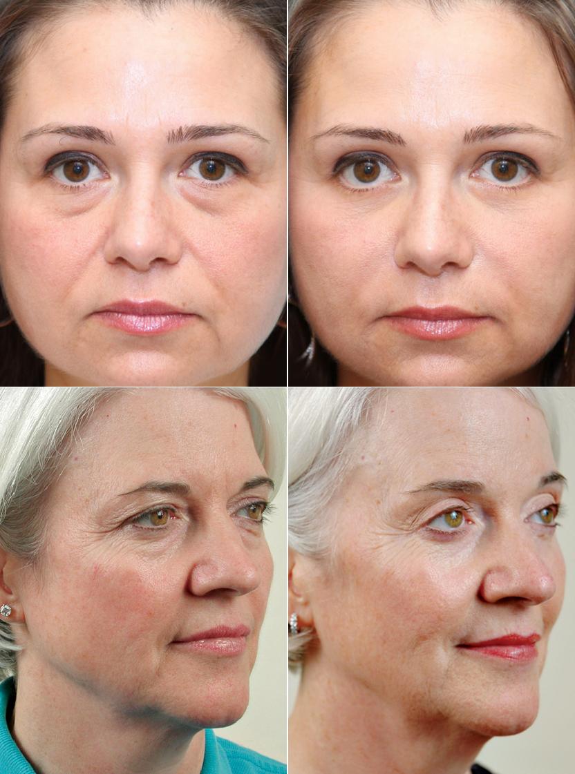 человека миостимуляция отзывы фото до и после лицо состоящие одних