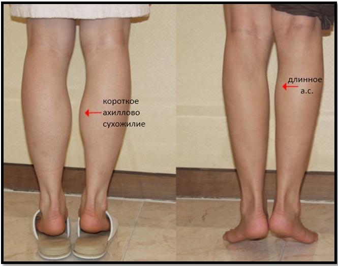 Похудеть В Икре Ног. Почему не худеют икры ног. Как похудеть в икрах ног в домашних условиях и быстро. Попеременный подъем на носочки
