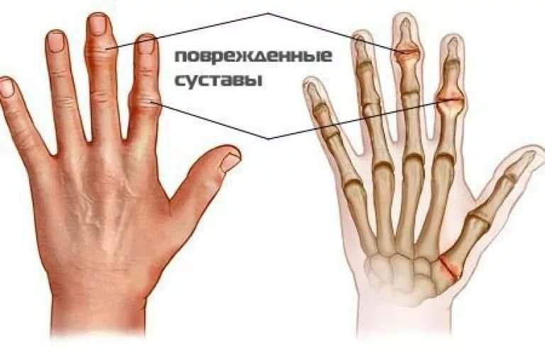 Болят суставы пальцев ноют танца терапия для взрослых разрабатываем суставы