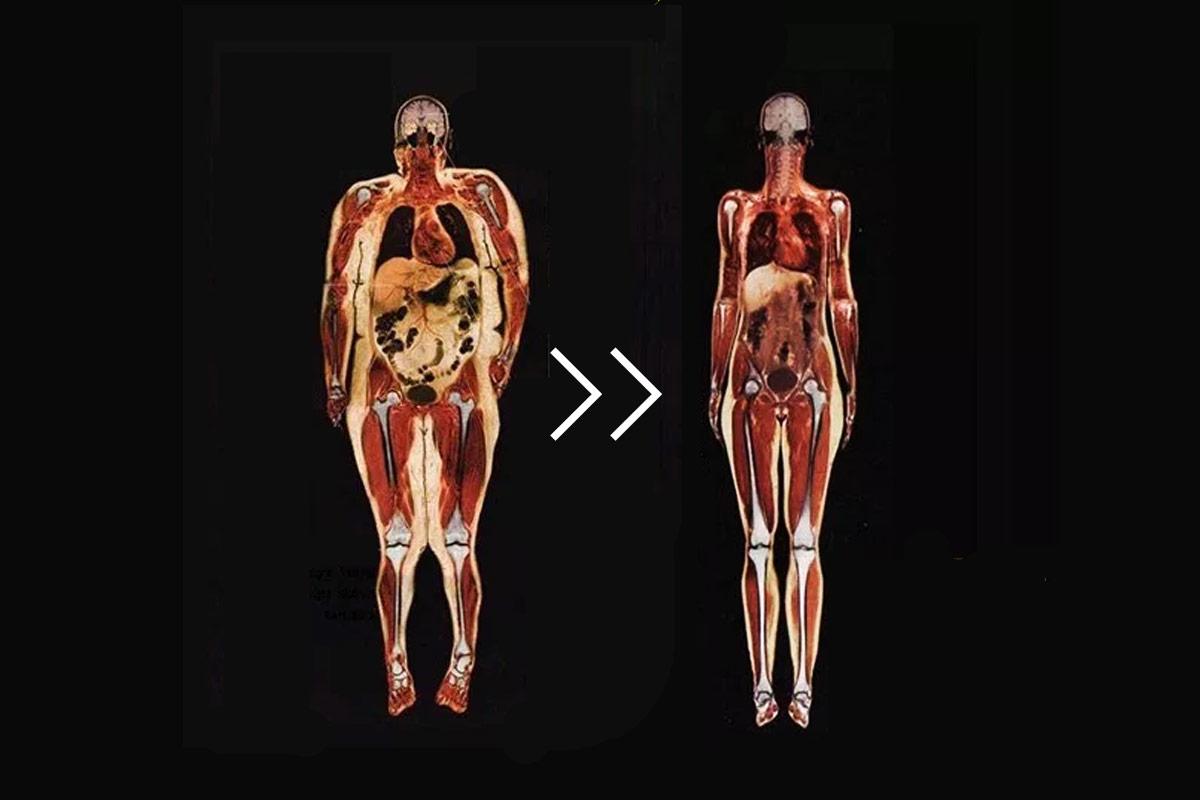 Как сжечь внутренний жир в организме
