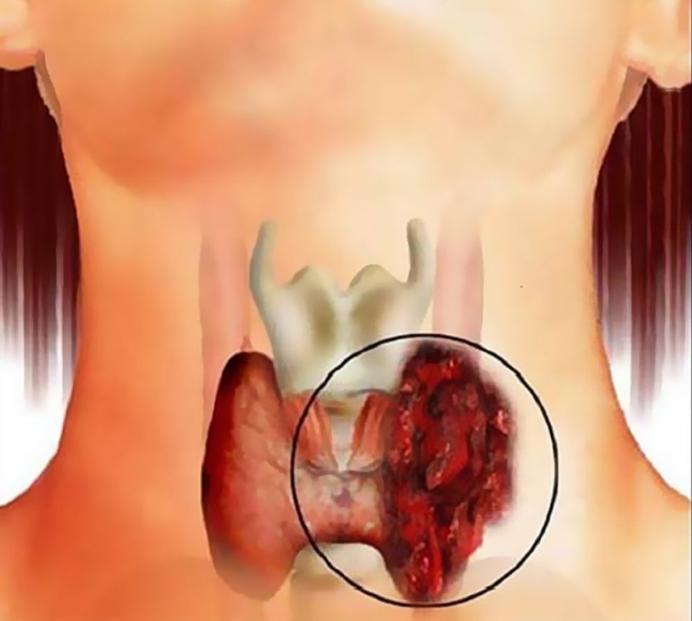 лечебные компрессы для щитовидки