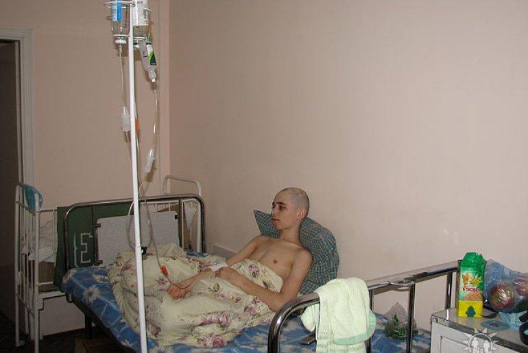 что такое химиотерапия и ее последствия фото критериями являются