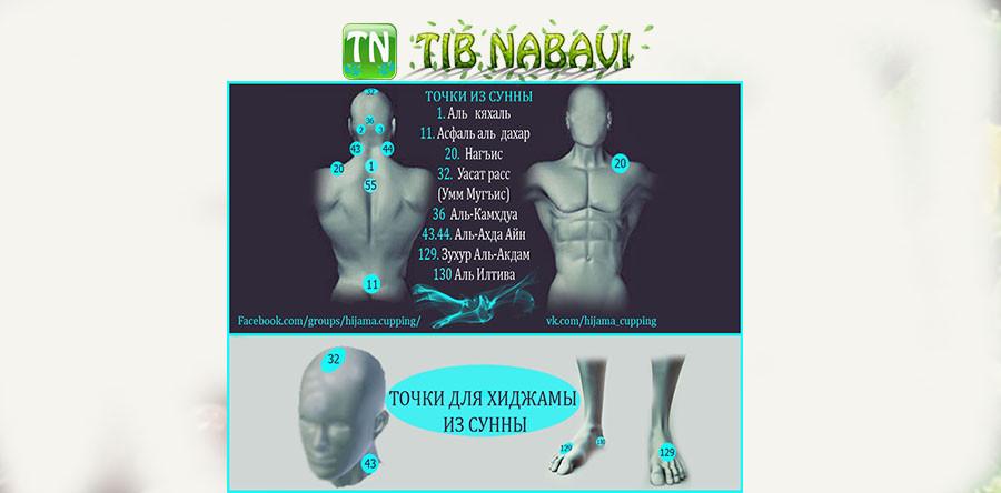 Все точки хиджамы картинки
