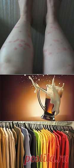 Почему комары некоторых людей любят больше, чем других?