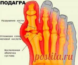 Диета при подагре на ногах и особенности правильного питания