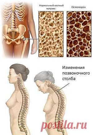 (+1) - Профилактика остеопороза | БУДЬ В ФОРМЕ!