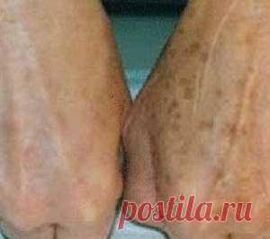 Las manchas de pigmento en la piel