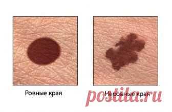 Меланома – это самый опасный вид рака кожи. Узнайте о нем.