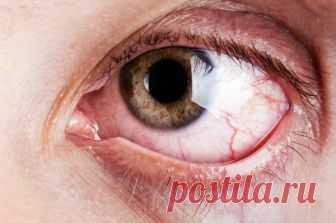 Улучшает размытое зрение и успокаивает жжение глаз с помощью простого домашнего рецепта    Подготовьте это естественное средство и восстановите зрение.           Вы чувствуете, что ваше зрение начинает ухудшаться, и вы не хотите носить очки или прибегать к хирургическому вмешательству –…