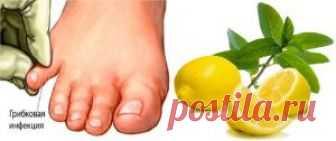El limón del hongo de las uñas en los pies