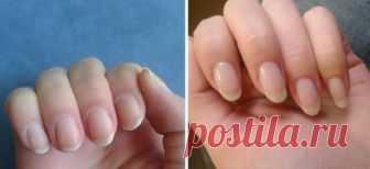 Дорогие салоны уже успели нажиться на простом желании многих девушек иметь крепкие и длинные ногти. Сегодня наша редакция поделится с тобой секретом, как отрастить ногти любой длины! Используя наше проверенное средство, ты не только укрепишь ногтевую пластину, но и забудешь о таких проблемах, как слоящиеся ногти и грибок! Как быстро отрастить ногти ИНГРЕДИЕНТЫ 1 ст. л. сухих соцветий ромашки 1 […]