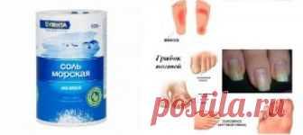 La sal marina del hongo de las uñas en los pies