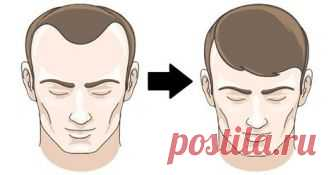 8 продуктов, которые очень быстро избавляют от выпадения волос! - 44life.ru Большинство людей ежедневно теряют около 100 волос, что не вызывает видимых изменений,...