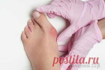 Как лечить косточку на ногах Вальгусная деформация первого пальца стопы (или, как принято называть эту патологию, «косточка на ноге») развивается при изменении в области плюсне-фалангового сустава, которое характеризуется нарушен...