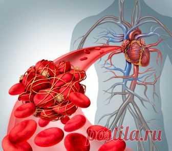 Продукты разжижающие кровь и препятствующие образованию тромбов | ZernoMag | Живое питание | Яндекс Дзен