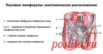 Удаление лимфоузла в паху