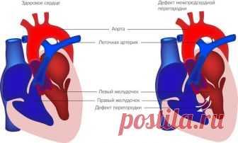 Разновидности врожденных и приобретенных пороков сердца | Вашорганизм | Яндекс Дзен