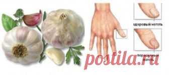 El ajo del hongo de las uñas en los pies
