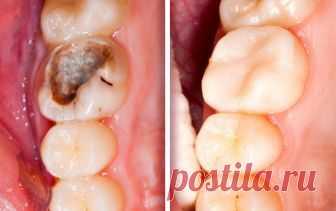 Ученые предложили альтернативу зубным пломбам Ученые предложили способ ускорить восстановление зубной эмали на основе небольших белков. Авторы уверены, что в результате может получиться удобный для применения метод противодействия кариесу.