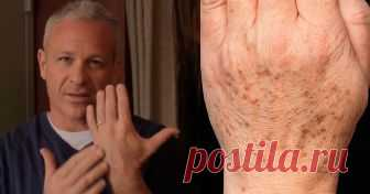 Американский доктор рекомендует: простой трюк быстро устранит пигментные пятна на коже! Всего 2 ингредиента! Узнайте больше полезного!