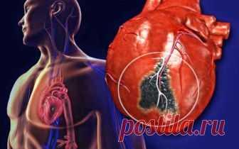 Инсульт, инфаркт и грязные артерии можно предупредить: лучшие продукты для сердца и кровеносной системы