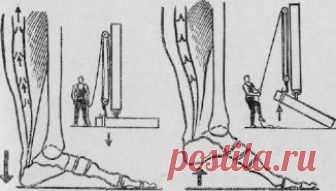 ПОСТУЧИТЕ ПЯТКАМИ О ПОЛ  Схема ступни человека при ударе пятки об пол. Такая чудодейственная виброгимнастика, предложенная академиком Микулиным, способна избавлять мышцы ног от избытка молочной кислоты, улучшать венозное кро…