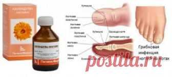 Лечение грибка ногтей настойками