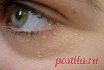 ¿Tiene puntos blancos en la piel debajo de los ojos? He aquí cómo deshacerse de ellos – Hoy En Belleza