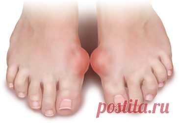 Косточка на ноге —лечение, причины возникновения на пальцах ног