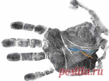 Как узнать о болезнях по руке: секреты хиромантии | Красота внутри вас | Яндекс Дзен
