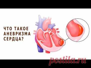 Что такое аневризма сердца и чем она опасна для жизни?