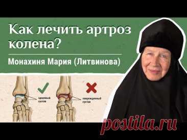 Артроз коленного сустава. «Давайте жить здорово!» Отвечает монахиня Мария (Литвинова)