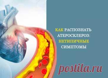Как распознать атеросклероз: Нетипичные симптомы