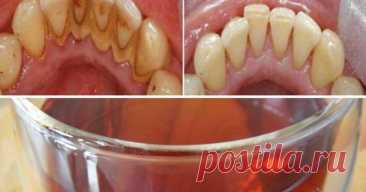 Если вам нужны хорошие здоровые зубы, вы должны прополоскать рот этим чаем! — ХОЗЯЮШКА24