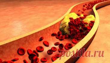 Простое средство для профилактики закупорки артерий