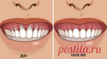 6 recipes of traditional medicine from periodontosis \/ Good luck