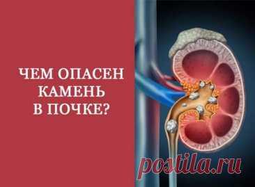 Чем опасны камни в почках - Народная медицина - медиаплатформа МирТесен идронефроз — это заболевание почки, характеризующееся расширением ее чашечек и лоханки, прогрессирующим истончением почечной ткани, сопровождающееся нарушением всех основных функций почки. Гидронефроз может быть врождённым или приобретённым вседствие других заболеваний. Гидронефроз (от греческого