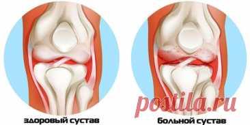 Что делать при артритах, артрозах? Бесценные рекомендации восточной медицины! - Образованная Сова