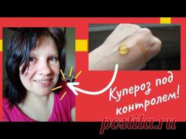 Нет Купероза на лице! Мой опыт борьбы с куперозом. Аптечные средства от расширенных сосудов на лице.