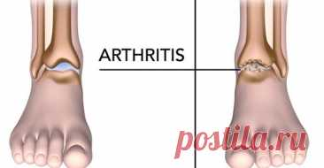 5 продуктов, которые уменьшают боль при артрите