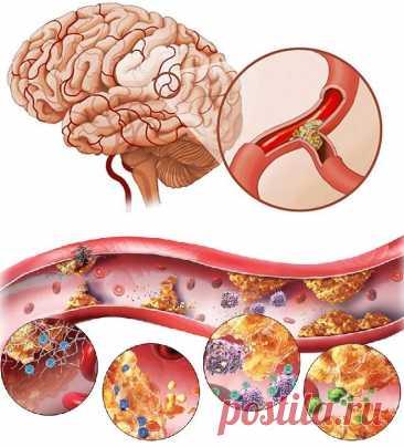 Атеросклероз сосудов головного мозга: причины