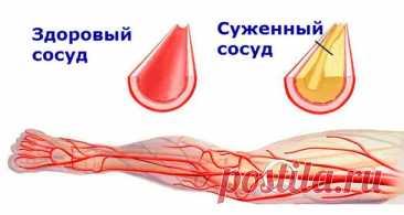 Чистые сосуды: 5 золотых рецептов от травника. Лечение атеросклероза - Народная медицина - медиаплатформа МирТесен