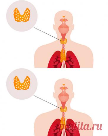 ¿La glándula tiroides o los nervios desvencijados?