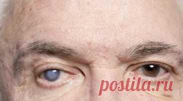 Симптомы и причины возникновения катаракты - Народная медицина - медиаплатформа МирТесен Катаракта – это помутнение или потеря прозрачности хрусталика глаза в любой его части. Это наиболее распространенное заболевание глаз и частая причина обратимой потери зрения. Наиболее распространенная форма – это та, которая появляется с возрастом (чаще от 60 до 65 лет), хотя есть и другие