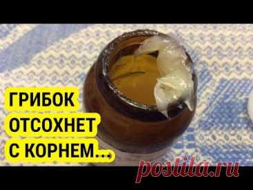 Эта ЯДРЁНАЯ Советская Мазь Разъест Весь Грибок с Ногтей! Купите в Любой Аптеке!