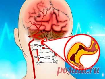 Что делать, если болит голова, шумит в ушах и немеют конечности? Признаки ангиодистонии сосудов головного мозга К начальным симптомам церебральной ангиодистонии относятся:  Головные боли; Шум у ушах; Общая слабость, вялость, сонливость; Низкая трудоспособность; Нарушения сна, бессонница; Забывчивость; Ощущение онемения в конечностях; Отеки в руках и ногах; Ощущение потемнения в глазах; Снижение зрения; Гормональные сбои в организме.