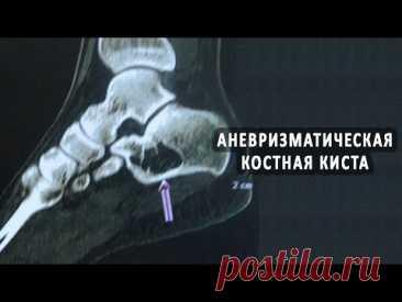 Что такое аневризматическая костная киста?