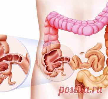 Что такое синдром дырявого кишечника и почему вам стоит об этом знать?